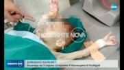 ДОМАШНО НАСИЛИЕ? Близначета са в болница в Пловдив със синини и кръвоизливи