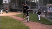 Момче играе бейзбол само с един крак!