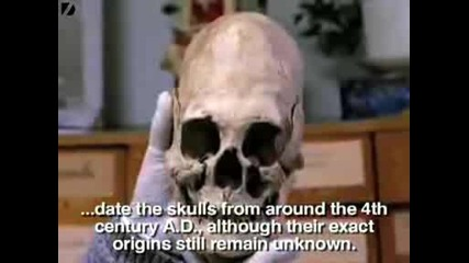 Strange Elongated Skulls Discovered