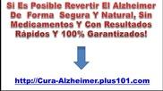 Alzheimer Tratamientos Alternativos