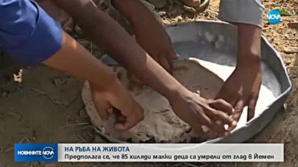 85 000 деца са починали от глад в Йемен