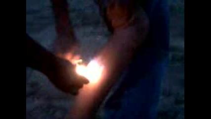 Как Да Си Изгориш Единия Крак
