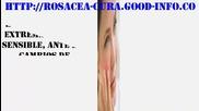 Remedios Caseros Para La Rosacea, Enfermedad De La Piel Rosacea, Rosacea Cura