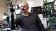 Бъдещето е тук: Как мъж живее с роботизирана ръка