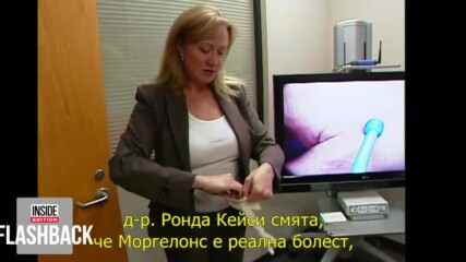 Моргелонова болест.mp4