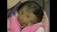 Бебе се е родило с две лица, четири очи , два носа , две усти