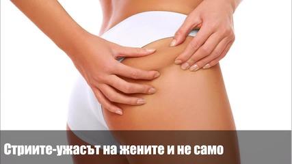 Muscle Damage - Стрии – кошмарът на жените, и не само…
