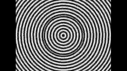 Хипноза