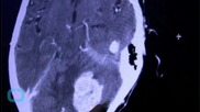Man Plays Beatles Song on Guitar While Undergoing Brain Surgery