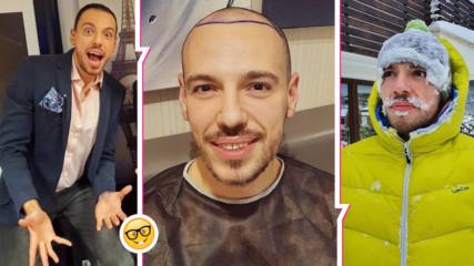 Дани Петканов си присади коса! 4100 присадки по-късно: Колко струва, боли ли, как се прави?
