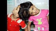 Сиамските близнаци