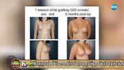 д-р Марита Айзенман за най-модерните и безопасни методи за корекция на гърди, нос и бръчки