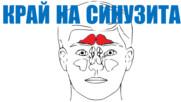 Сложете край на синусните инфекции | Изпробвано и проверено
