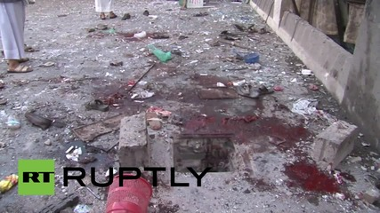 Йемен: Поне 25 души загинаха при взрив в Сана