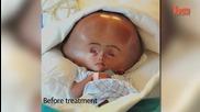 Нова надежда за бебе с отоци в главата