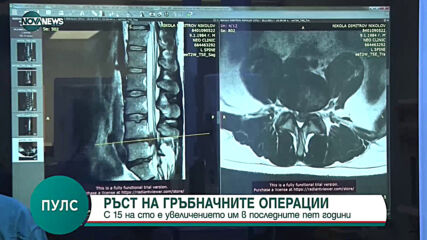"""""""Пулс"""": С 15 % са се увеличили гръбначните операции"""
