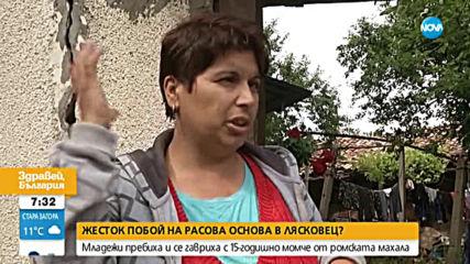 Младежи пребиха и се гавриха с 15-годишно момче в Лясковец