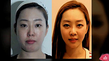50 корейки с успешни пластични операции l Преди и След