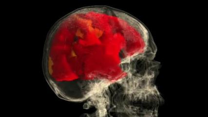 Женският мозък по време на оргазъм