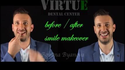 Усмивка преди и след