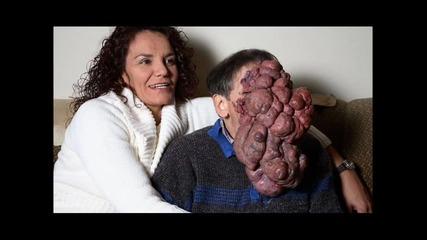 16+ Ужас! човек без лице !