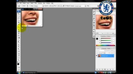 Как да премахнем някой зъб ? (високо качество)
