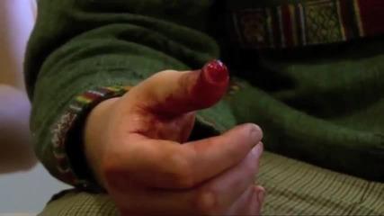 Срязан пръст