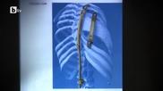 операция спаси дете, родено без четири ребра