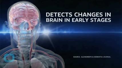 Учените смятат, че Алцхаймерът е заложен в човешката еволюция