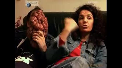 Шокираща История - Мъж с огромен тумор на лицето