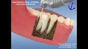 Вижте как се лекуват професионално зъби ;)
