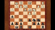 Chess Lesson - Alekhine Defence