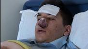 Montenegro: Anti-NATO activist hospitalised after brutal beating in Podgorica