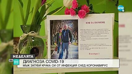 ДИАГНОЗА COVID-19: Мъж загуби крака си от инфекция след коронавирус