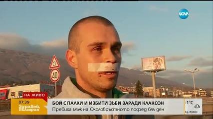 Млад мъж пребит с метални палки след скандал на пътя