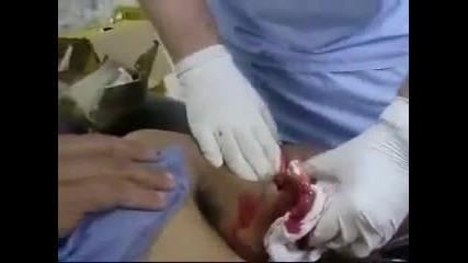 Анаболи лош ефект (замислете се преди да ползвате)
