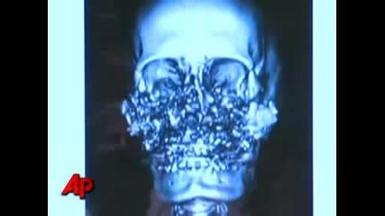 Първата успешна трансплантация на лице