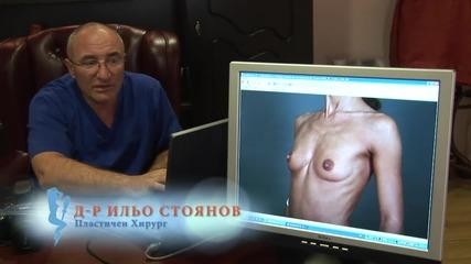 Предоперативен анализ увеличаване бюст Ильо Стоянов