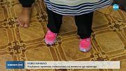Сложиха протези на дете без крайници