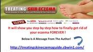 Treating Skin Eczema Guide - Amazing Program