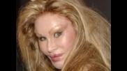 Жена прилича на звяр след пластични операции - потресаващ резултат