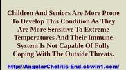 Chelitis, Antifungal Cream For Angular Cheilitis, Treatment Angular Cheilitis, Treating Cheilitis