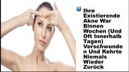 Akne Rosacea Behandlung