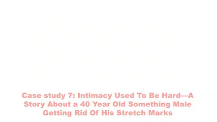 Remove Stretch Marks Naturally Home Remedies