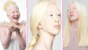 Красива като сняг: Сирачето, за което модните списания се надпреварват