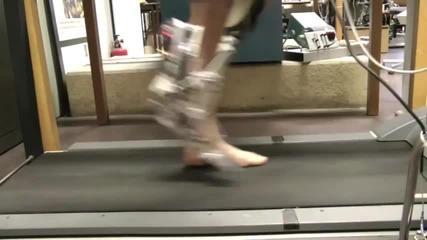 Протеза имитира човешкия крак до съвършенство
