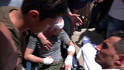State of Palestine: Injured and killed in Israeli strikes rushed to Al-Shifa Hospital in Gaza