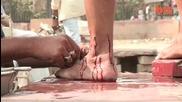 Знахари в Индия кълцат хора и им пускат кръв, за да ги лекуват