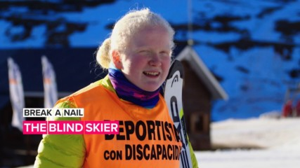 Break a Nail: This fearless teen skier doesn't believe in limitations