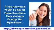 Bow Legs, Knock Kneed Lobster Menu, Bow Legs In Toddlers, Knock Knee Treatment In Adults